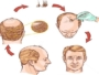 Hair n Images: Your ultimate destination for hair transplant in Surat