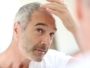 What steps should be taken to prevent hair loss?